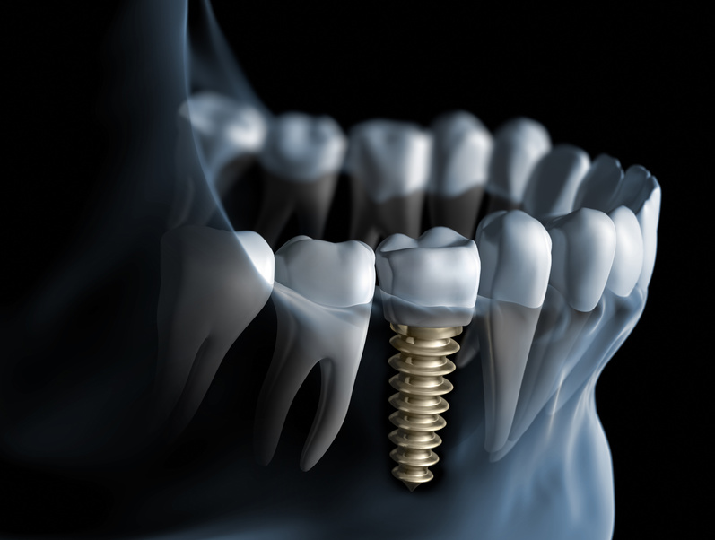 implantatbehandling